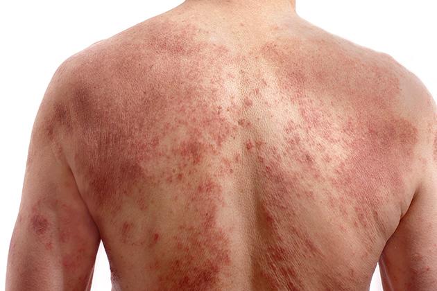 Novartis obtains European approval for Cosentyx to treat