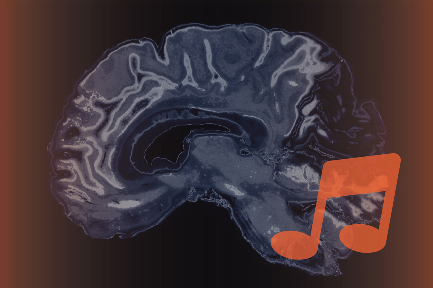 Music and the brain. (Christa Tubach/UConn Image)