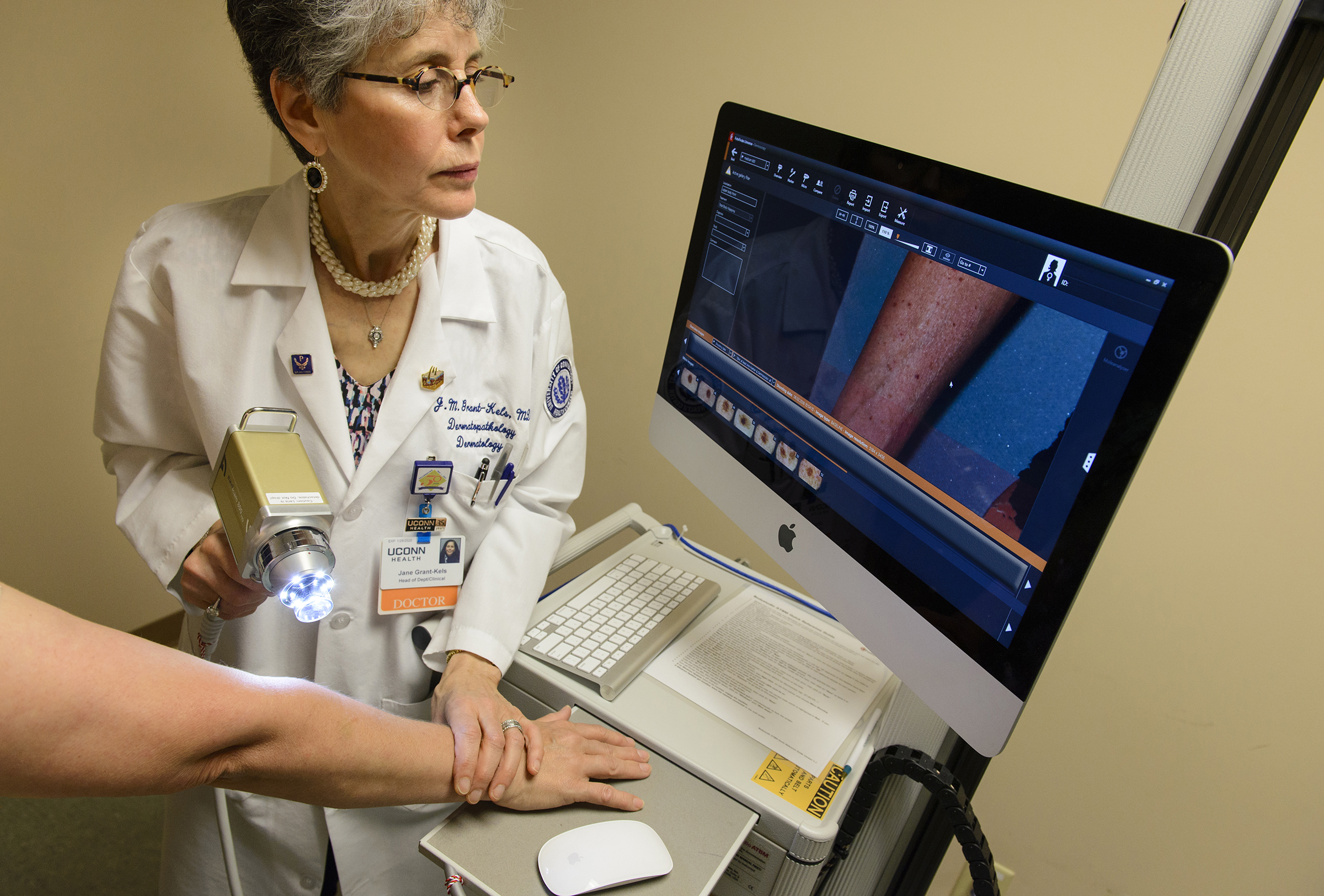 The Power Of Light Limits Skin Cancer Biopsies Uconn Today