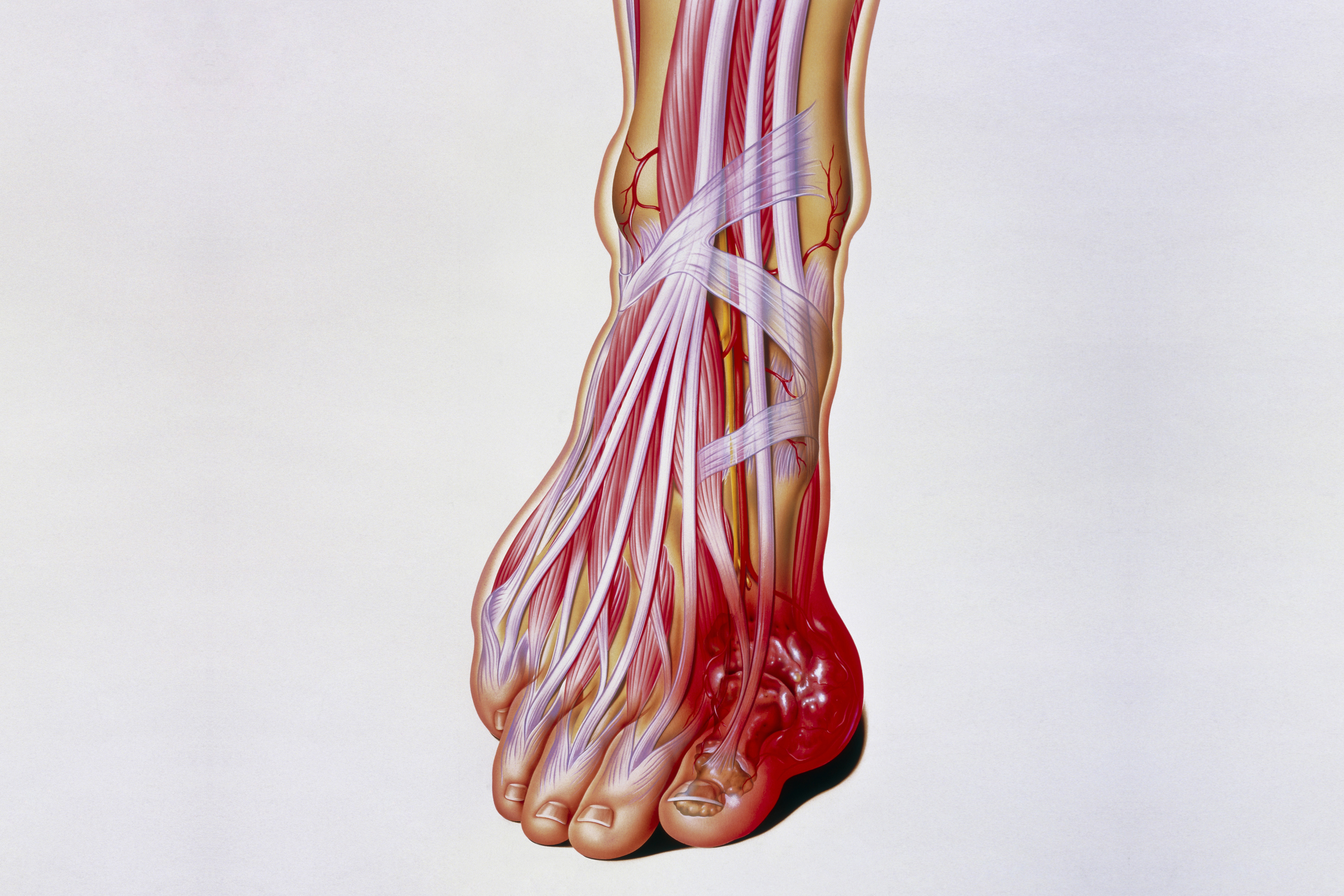 Major Cardiovascular Study Of Gout Patients Has Unexpected Finding Uconn Today