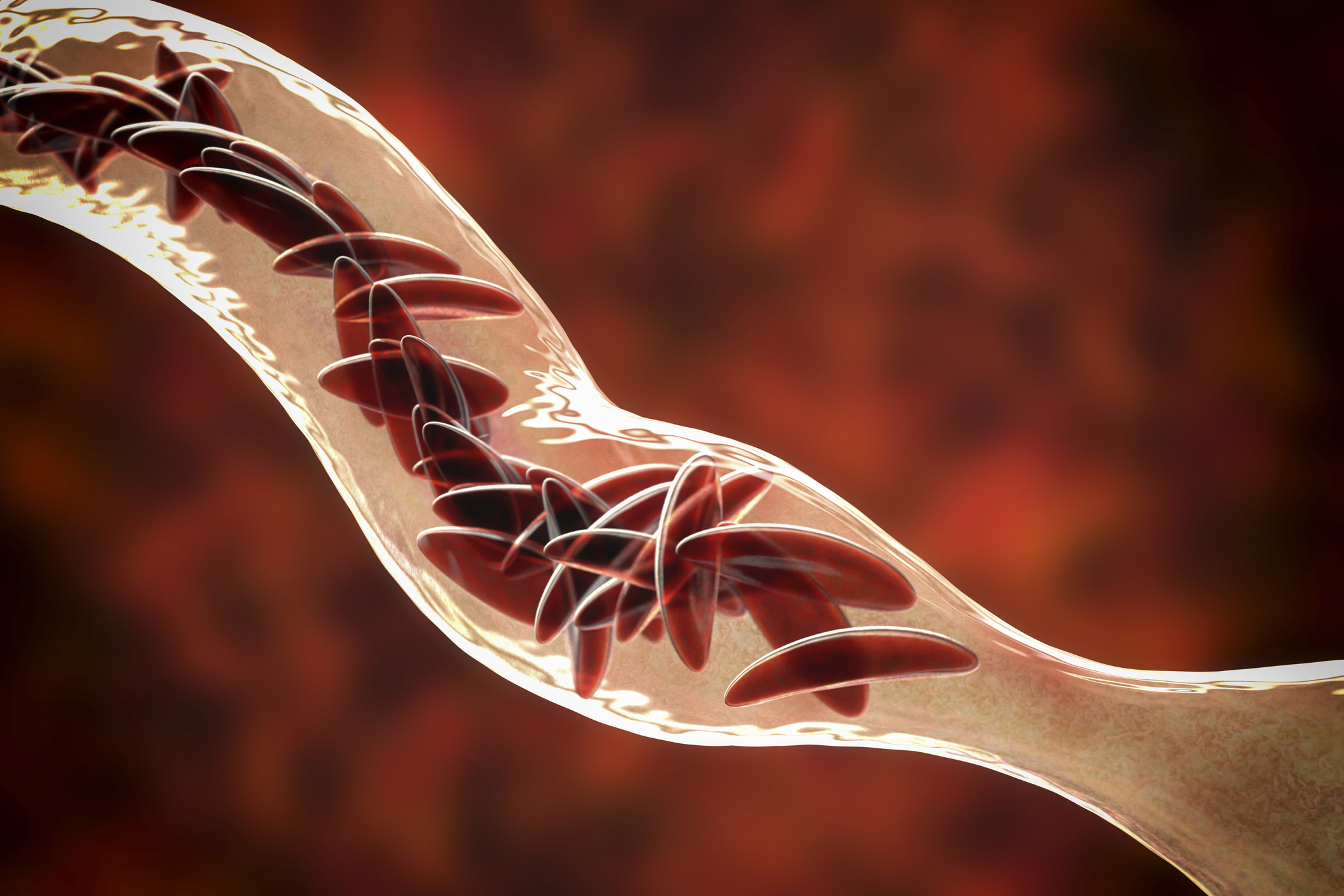 A blood vessel blocked by red blood cells that are affected by sickle cell anemia and are crescent shaped. (Getty Images)