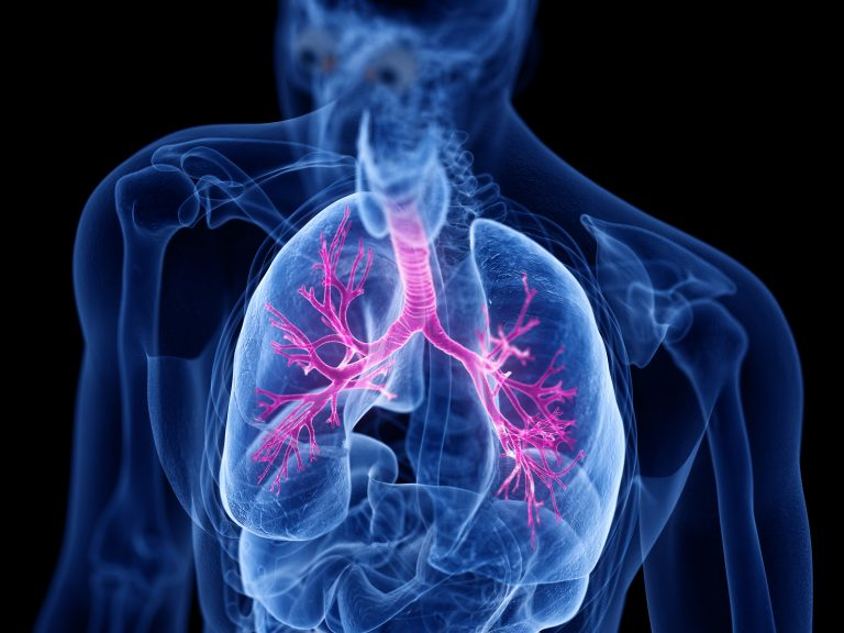 A 3-D rendering of the human bronchial system, affected by asthma.